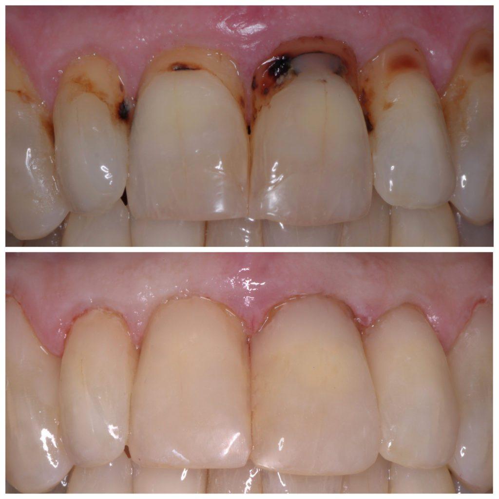 Dentist Burgess Hill   Denplan Dentist West Sussex