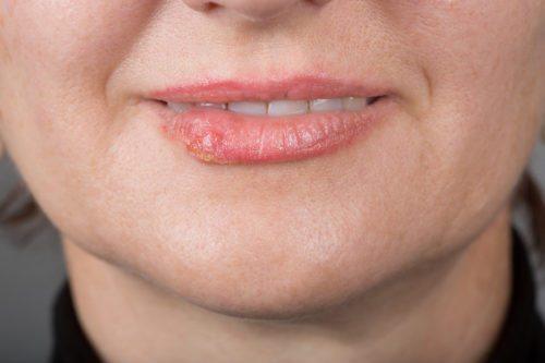 Dental Advice | West Sussex Dentist | Burgess Hill Dental
