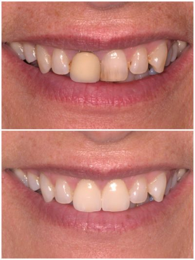 1-sandy-jujeny-bhd-clinical-crown-and-veneer2