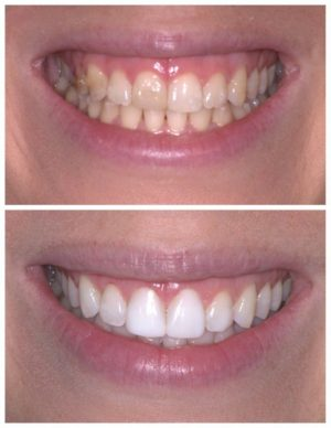 1-jenny-godding-composite-laser-following-invisalign1