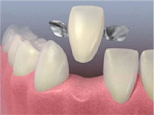 treatments-cosmetic-dentistry-porcelain-ceramic-and-precious-metal