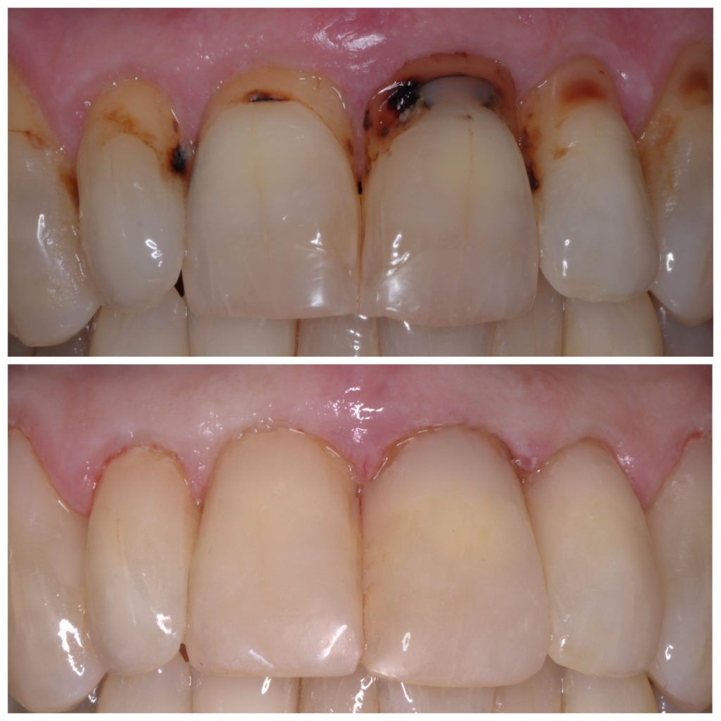 aa-tooth-colored-fillings-page